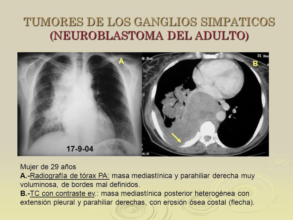 TUMORES DE LOS GANGLIOS SIMPATICOS (NEUROBLASTOMA DEL ADULTO) A Mujer de 29 años A.-Radiografía de tórax PA: masa mediastínica y parahiliar derecha mu