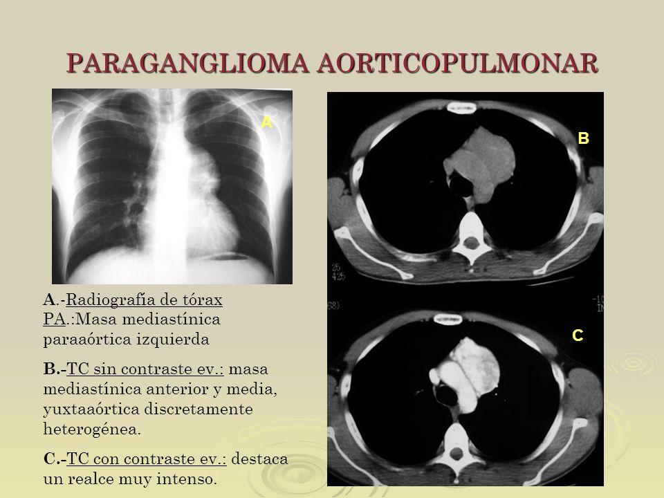 PARAGANGLIOMA AORTICOPULMONAR A.-Radiografía de tórax PA.:Masa mediastínica paraaórtica izquierda B.- TC sin contraste ev.: masa mediastínica anterior