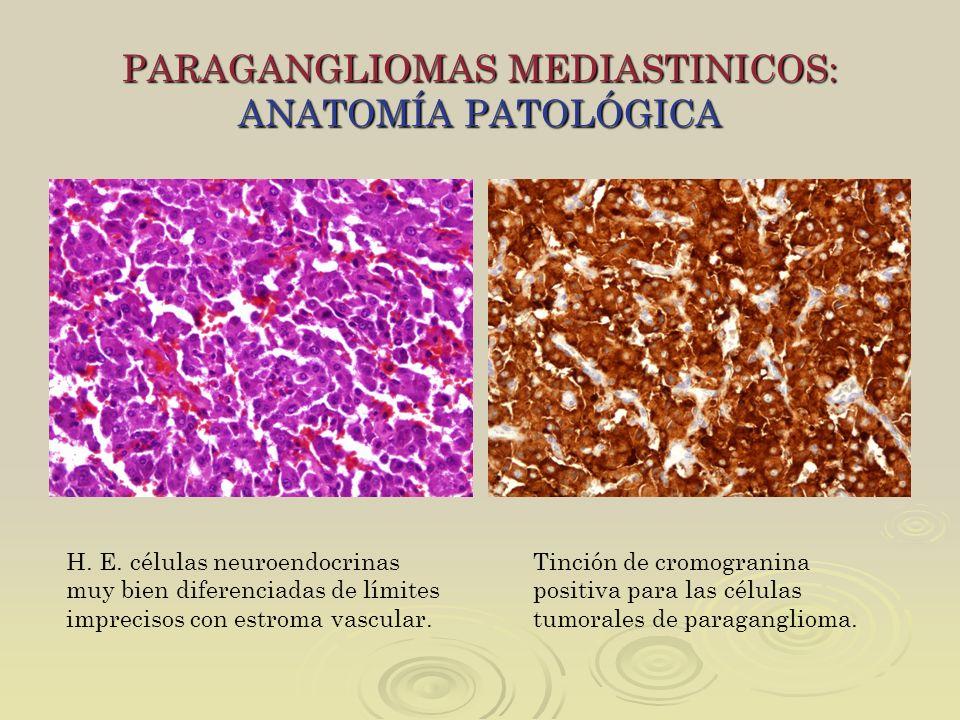 PARAGANGLIOMAS MEDIASTINICOS: ANATOMÍA PATOLÓGICA H. E. células neuroendocrinas muy bien diferenciadas de límites imprecisos con estroma vascular. Tin