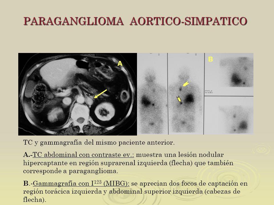 PARAGANGLIOMA AORTICO-SIMPATICO TC y gammagrafía del mismo paciente anterior. A.- TC abdominal con contraste ev.: muestra una lesión nodular hipercapt