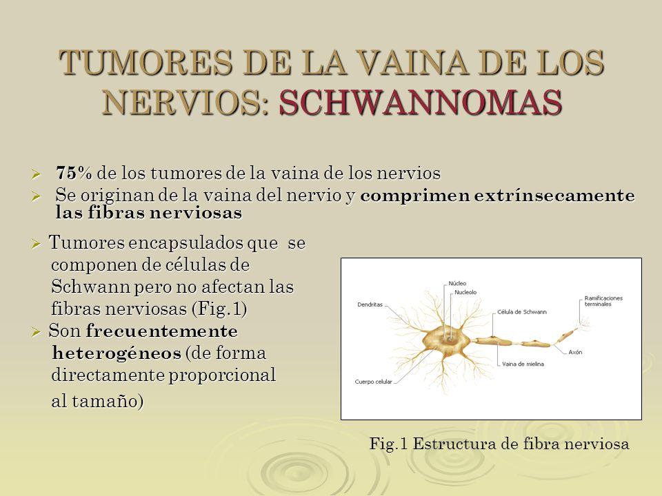 TUMORES DE LA VAINA DE LOS NERVIOS: SCHWANNOMAS 75% de los tumores de la vaina de los nervios 75% de los tumores de la vaina de los nervios Se origina