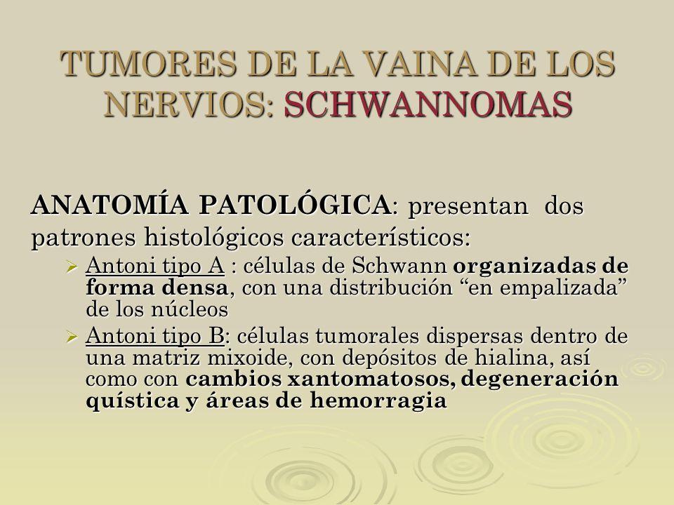 TUMORES DE LA VAINA DE LOS NERVIOS: SCHWANNOMAS ANATOMÍA PATOLÓGICA : presentan dos patrones histológicos característicos: Antoni tipo A : células de