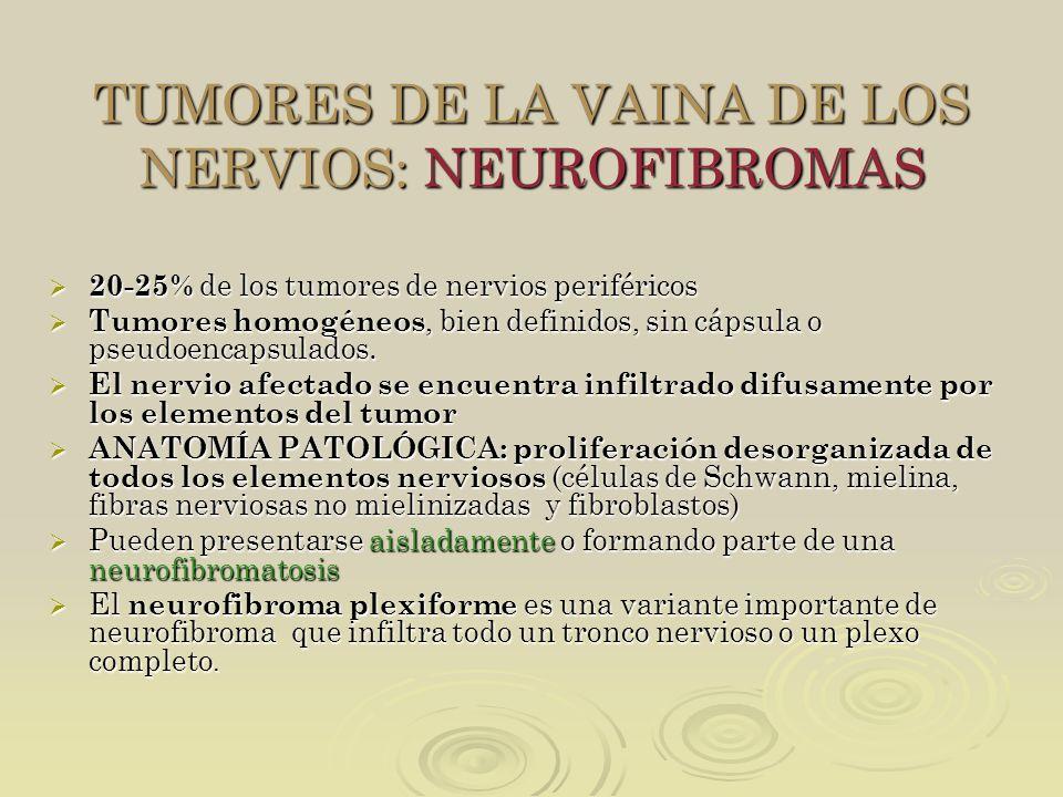 TUMORES DE LA VAINA DE LOS NERVIOS: NEUROFIBROMAS 20-25% de los tumores de nervios periféricos 20-25% de los tumores de nervios periféricos Tumores ho
