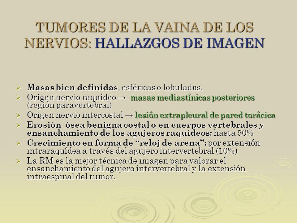 TUMORES DE LA VAINA DE LOS NERVIOS: HALLAZGOS DE IMAGEN Masas bien definidas, esféricas o lobuladas. Masas bien definidas, esféricas o lobuladas. Orig