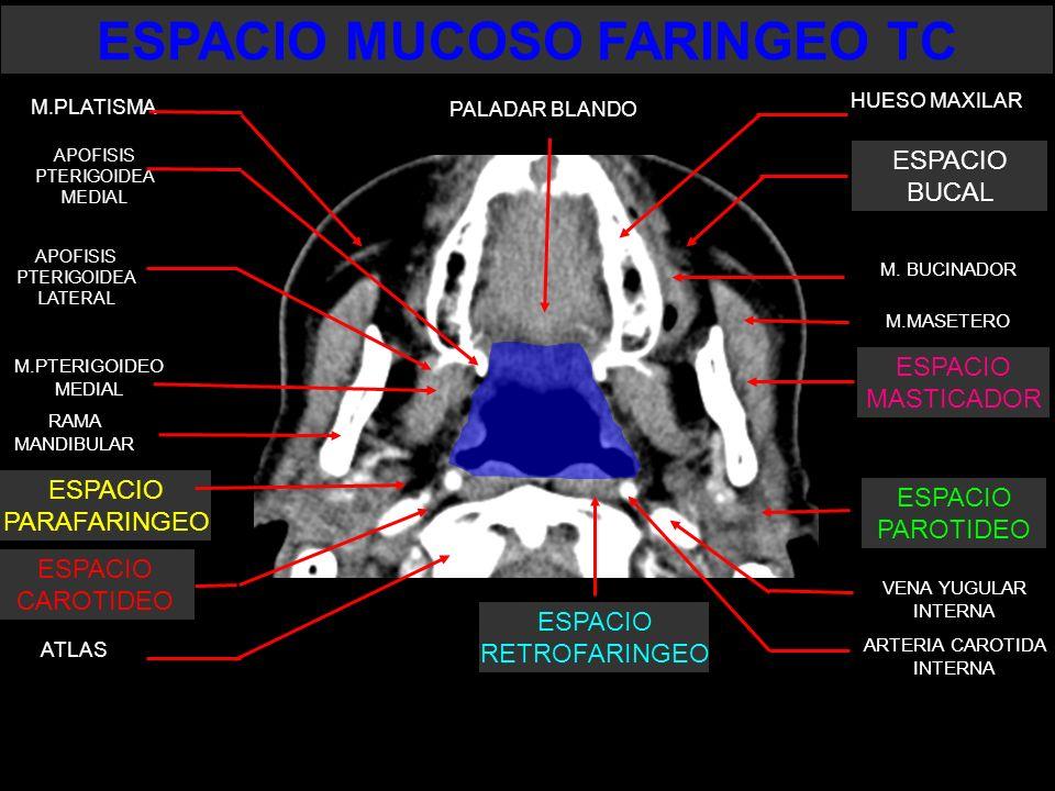 M.MASETERO VENA YUGULAR INTERNA ARTERIA CAROTIDA INTERNA APOFISIS PTERIGOIDEA MEDIAL APOFISIS PTERIGOIDEA LATERAL M.PTERIGOIDEO MEDIAL ESPACIO PARAFAR