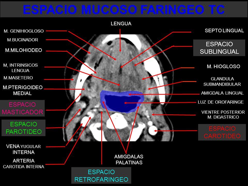 LUZ DE OROFARINGE SEPTO LINGUAL LENGUA M.BUCINADOR M.MASETERO M.PTERIGOIDEO MEDIAL VENA YUGULAR INTERNA ARTERIA CAROTIDA INTERNA AMIGDALAS PALATINAS M