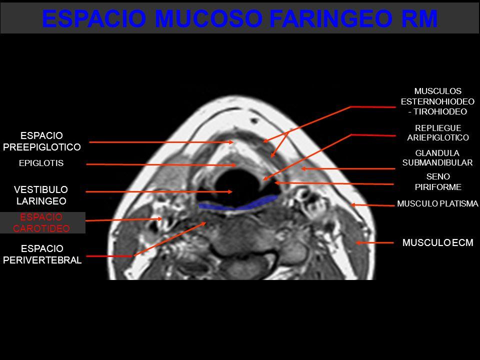 GLANDULA SUBMANDIBULAR ESPACIO PERIVERTEBRAL SENO PIRIFORME VESTIBULO LARINGEO EPIGLOTIS MUSCULO ECM MUSCULO PLATISMA ESPACIO PREEPIGLOTICO REPLIEGUE