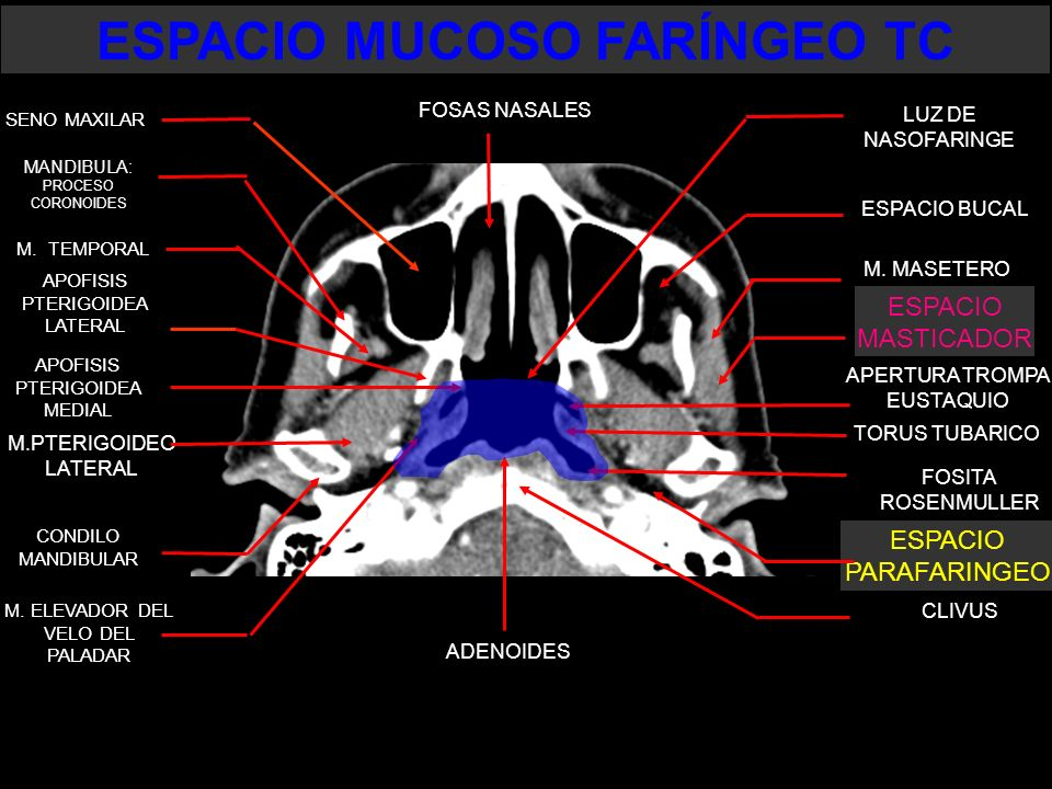 ESPACIO PARAFARINGEO ESPACIO MUCOSO FARÍNGEO TC SENO MAXILAR LUZ DE NASOFARINGE M. MASETERO M. TEMPORAL M.PTERIGOIDEO LATERAL APOFISIS PTERIGOIDEA LAT