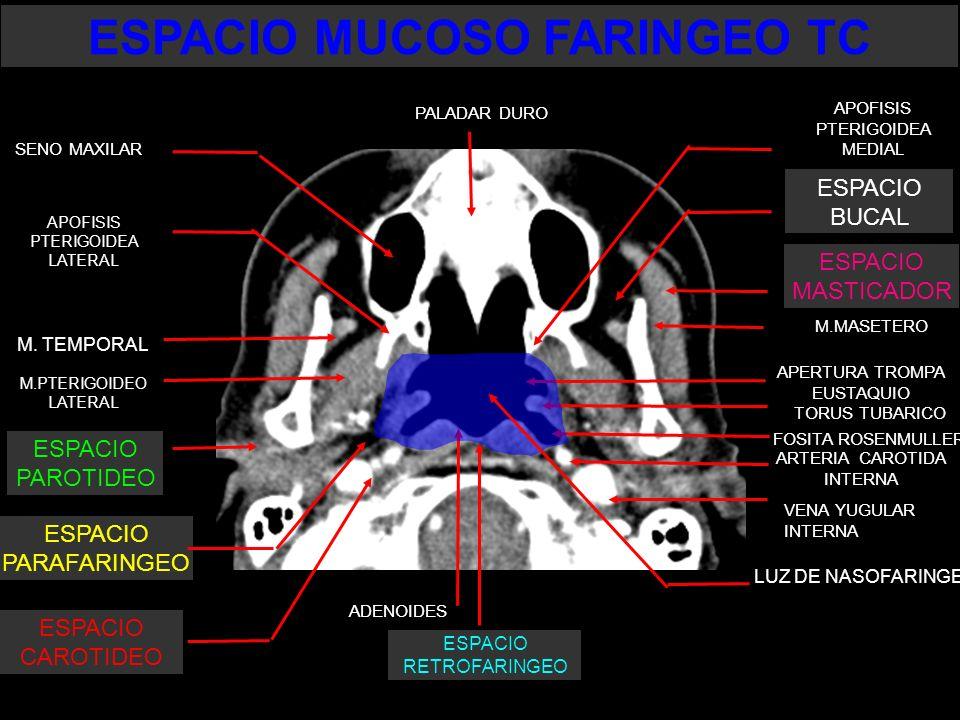 LUZ DE NASOFARINGE M.MASETERO APERTURA TROMPA EUSTAQUIO TORUS TUBARICO FOSITA ROSENMULLER ESPACIO PARAFARINGEO ESPACIO CAROTIDEO ADENOIDES M. TEMPORAL