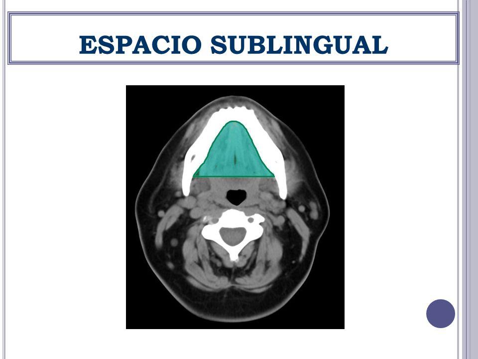 ESPACIO SUBLINGUAL