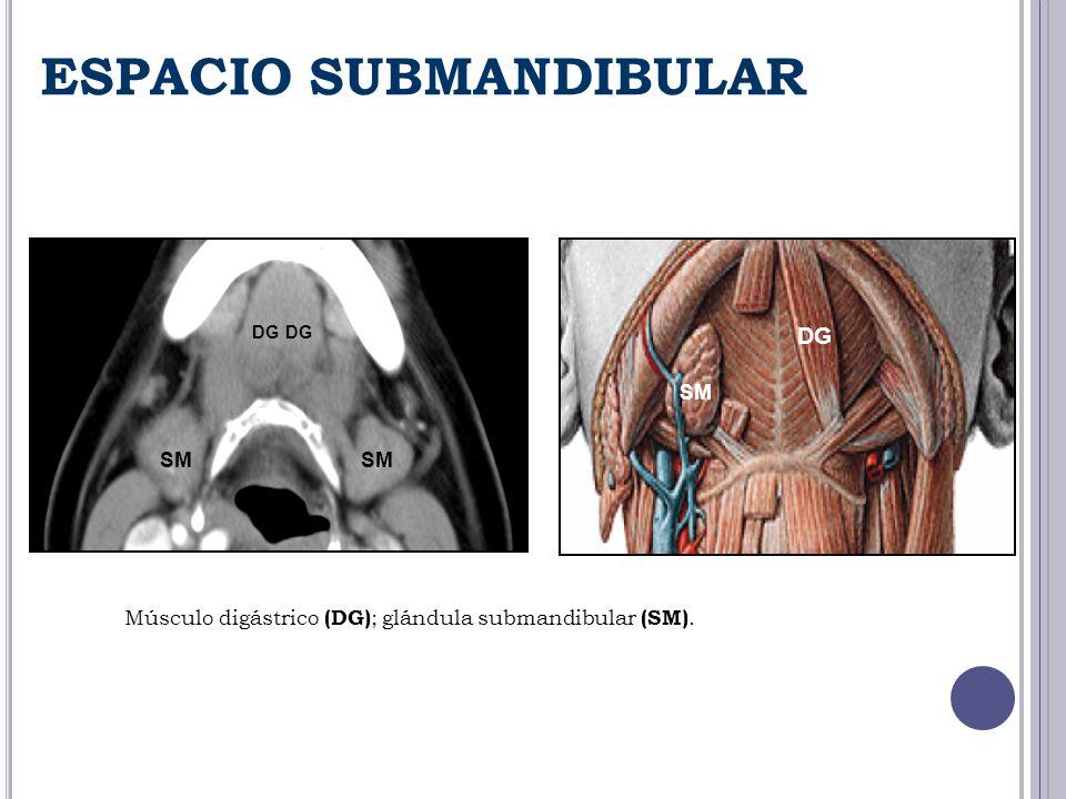 ESPACIO SUBMANDIBULAR SM DG Músculo digástrico (DG) ; glándula submandibular (SM).
