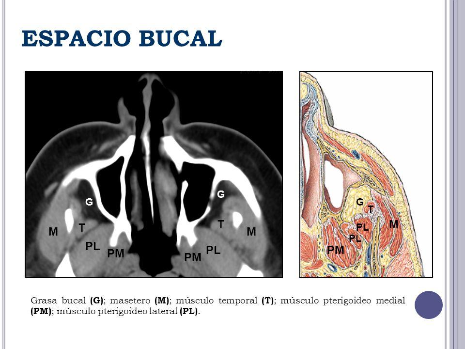 ESPACIO BUCAL M MM G G G T T T PL PM Grasa bucal (G) ; masetero (M) ; músculo temporal (T) ; músculo pterigoideo medial (PM) ; músculo pterigoideo lat