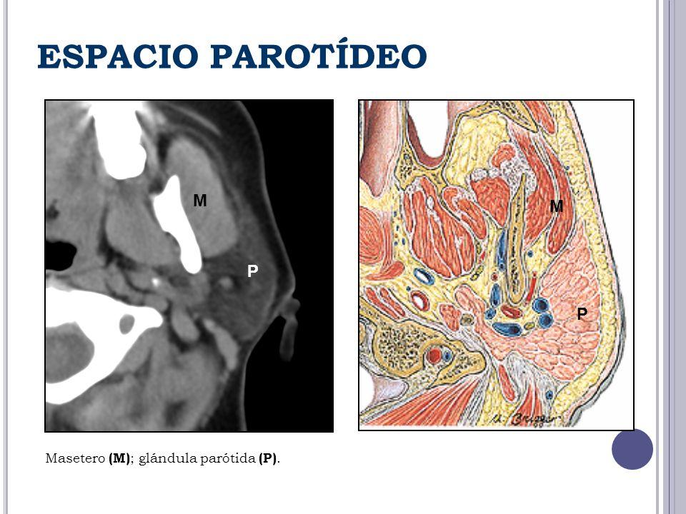 ESPACIO PAROTÍDEO M M P P Masetero (M) ; glándula parótida (P).