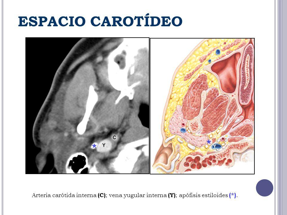 ESPACIO CAROTÍDEO Y C * * C Y Arteria carótida interna (C) ; vena yugular interna (Y) ; apófisis estiloides (*).