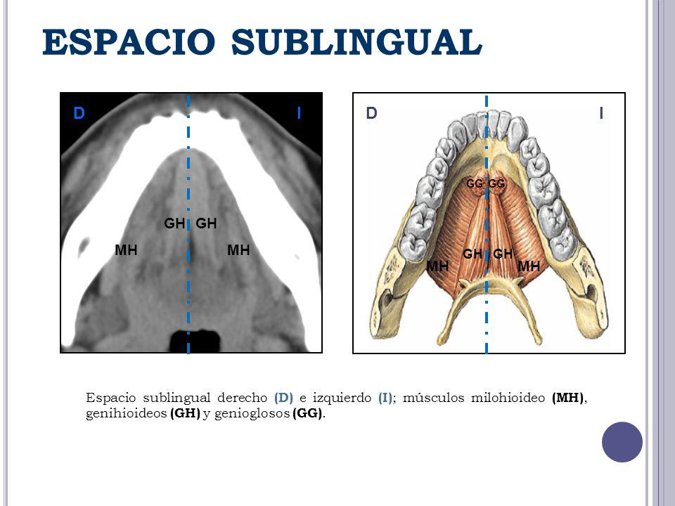 DDII GH GG MH ESPACIO SUBLINGUAL Espacio sublingual derecho (D) e izquierdo (I) ; músculos milohioideo (MH), genihioideos (GH) y genioglosos (GG).