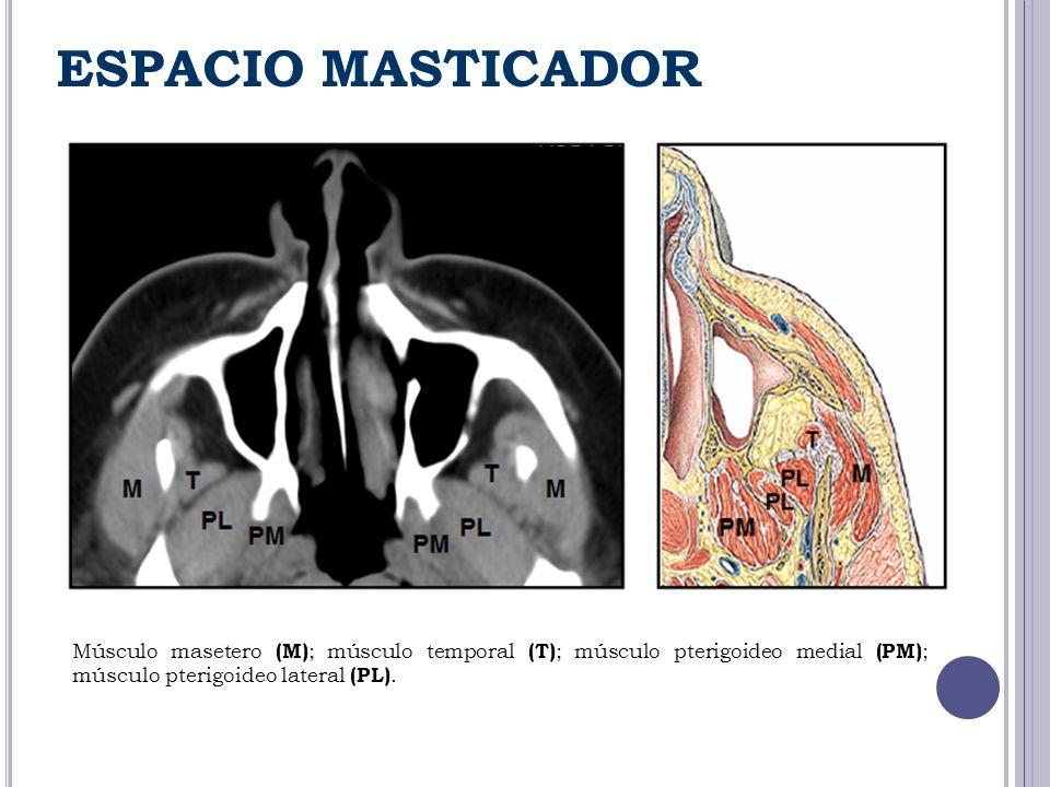 ESPACIO MASTICADOR Músculo masetero (M) ; músculo temporal (T) ; músculo pterigoideo medial (PM) ; músculo pterigoideo lateral (PL).