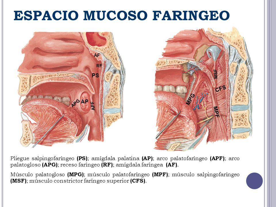 Pliegue salpingofaríngeo (PS) ; amígdala palatina (AP) ; arco palatofaríngeo (APF) ; arco palatogloso (APG) ; receso faríngeo (RF) ; amígdala faríngea
