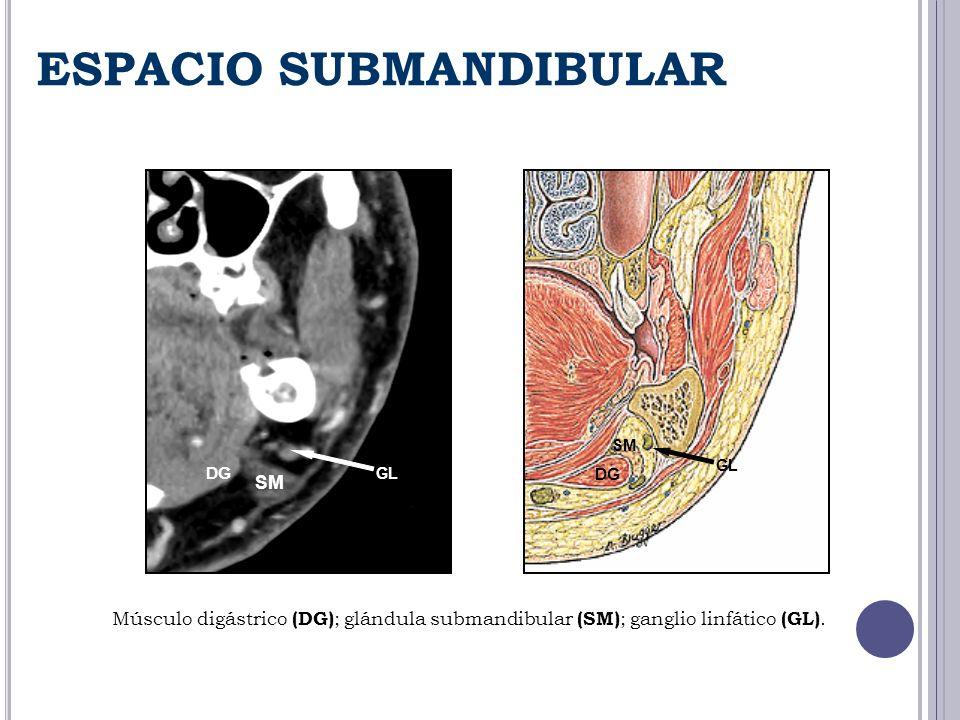 ESPACIO SUBMANDIBULAR SM GL DG SM DG GL Músculo digástrico (DG) ; glándula submandibular (SM) ; ganglio linfático (GL).