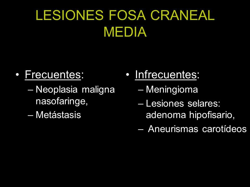 LESIONES FOSA CRANEAL MEDIA Frecuentes: –Neoplasia maligna nasofaringe, –Metástasis Infrecuentes: –Meningioma –Lesiones selares: adenoma hipofisario, – Aneurismas carotídeos