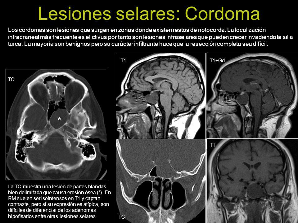 Lesiones selares: Cordoma Los cordomas son lesiones que surgen en zonas donde existen restos de notocorda. La localización intracraneal más frecuente