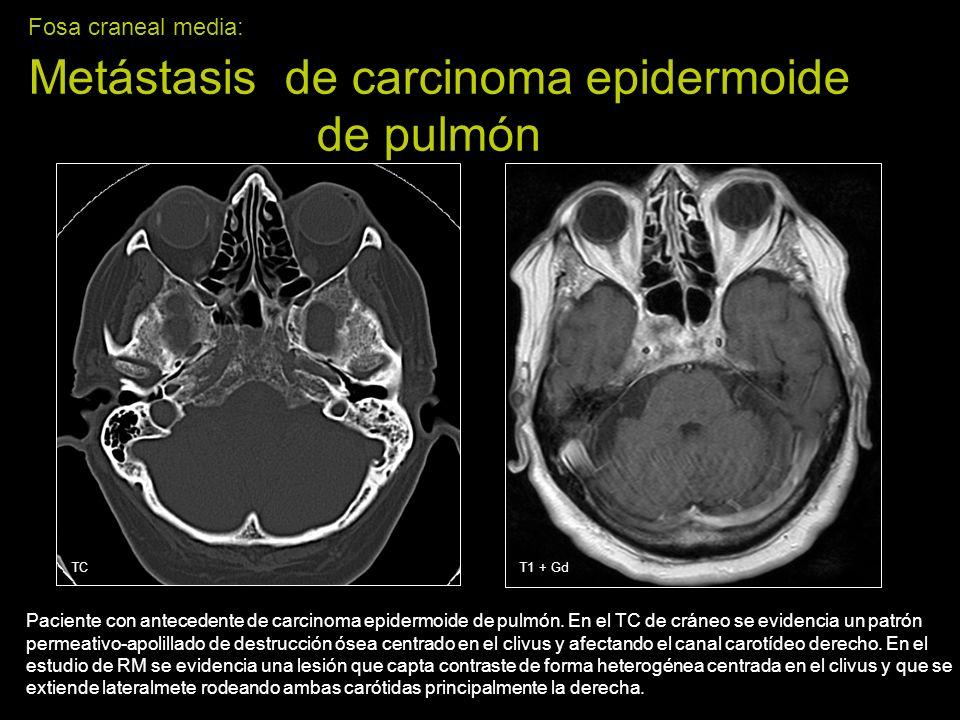 Fosa craneal media: Metástasis de carcinoma epidermoide de pulmón Paciente con antecedente de carcinoma epidermoide de pulmón. En el TC de cráneo se e