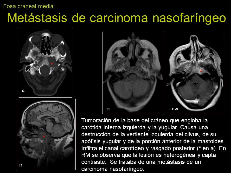 Fosa craneal media: Metástasis de carcinoma nasofaríngeo Tumoración de la base del cráneo que engloba la carótida interna izquierda y la yugular. Caus