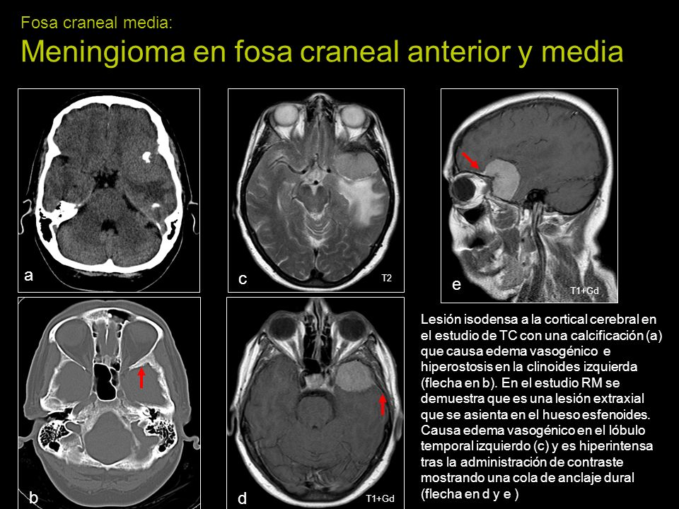 Fosa craneal media: Meningioma en fosa craneal anterior y media a b c d e Lesión isodensa a la cortical cerebral en el estudio de TC con una calcificación (a) que causa edema vasogénico e hiperostosis en la clinoides izquierda (flecha en b).