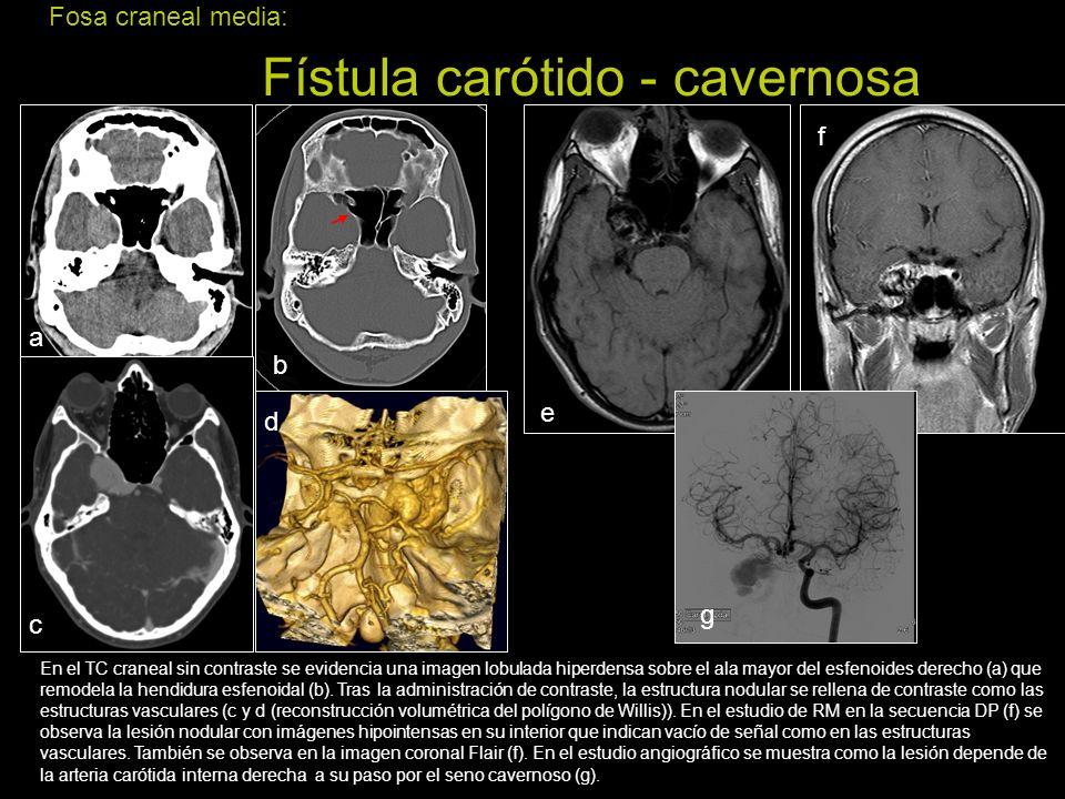 Fosa craneal media: Fístula carótido - cavernosa En el TC craneal sin contraste se evidencia una imagen lobulada hiperdensa sobre el ala mayor del esf