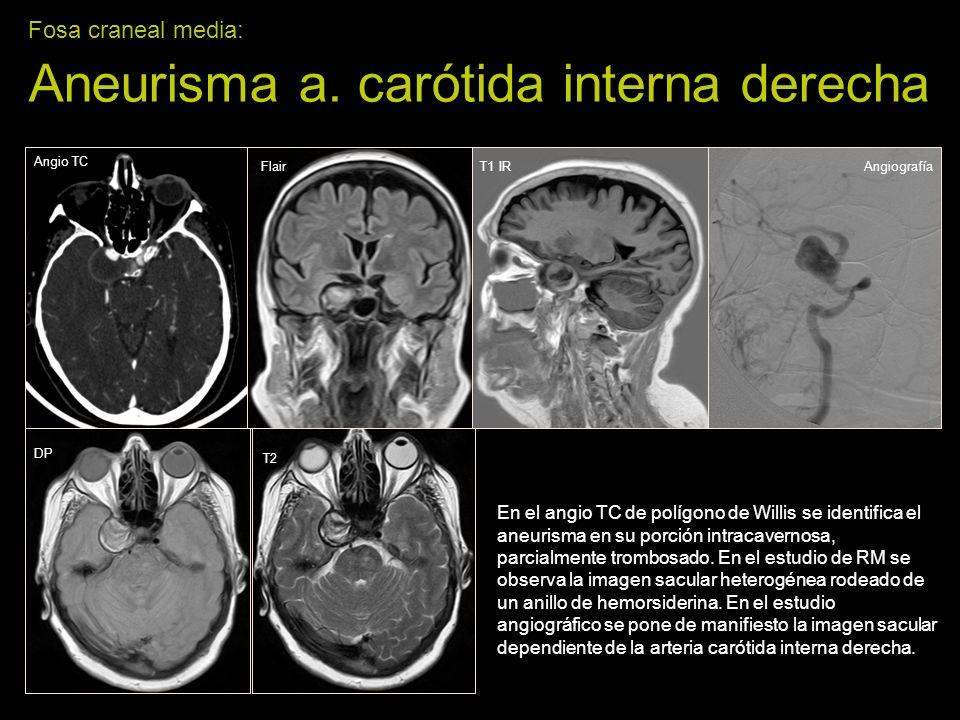 Fosa craneal media: Aneurisma a. carótida interna derecha En el angio TC de polígono de Willis se identifica el aneurisma en su porción intracavernosa
