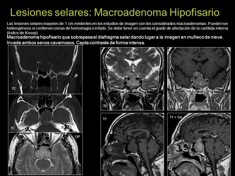 Lesiones selares: Hipofisitis Aumento del tamaño y realce de la hipófisis con engrosamiento del tallo hipofisario que capta intensamente contraste Es una enfermedad inflamatoria infrecuente que puede afectar al infundíbulo.