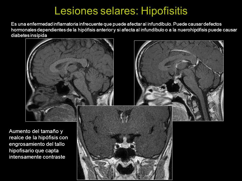 Lesiones selares: Meningioma selar Suelen ser meningiomas con origen en el diafragma selar.