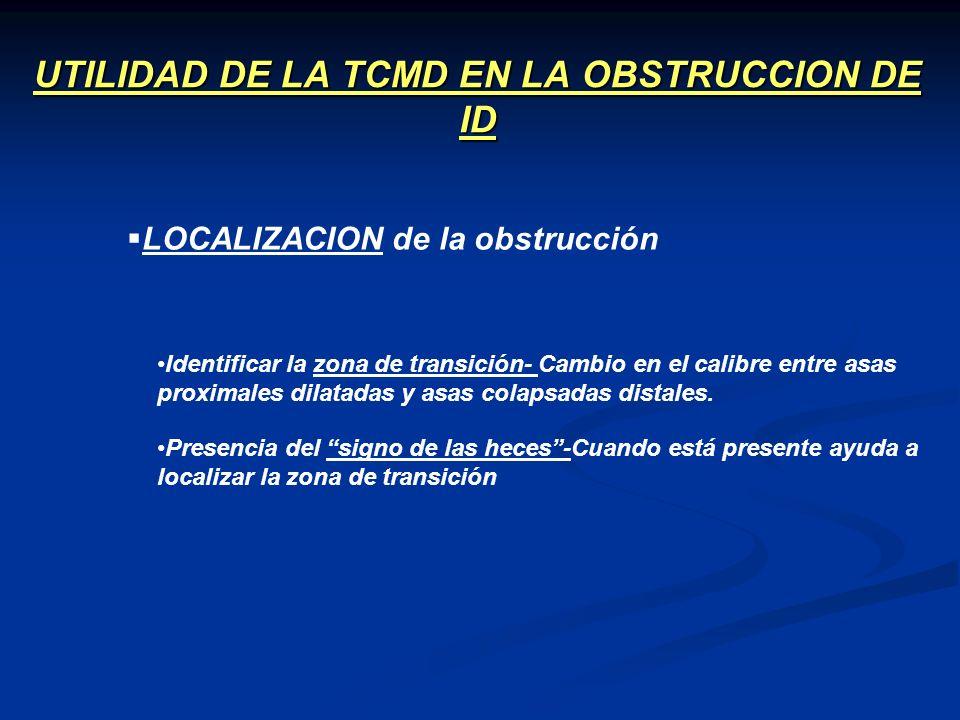 UTILIDAD DE LA TCMD EN LA OBSTRUCCION DE ID LOCALIZACION de la obstrucción Identificar la zona de transición- Cambio en el calibre entre asas proximal