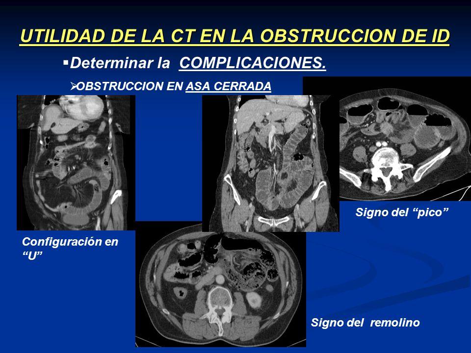 UTILIDAD DE LA CT EN LA OBSTRUCCION DE ID OBSTRUCCION EN ASA CERRADA Determinar la COMPLICACIONES. Configuración en U Signo del pico Signo del remolin