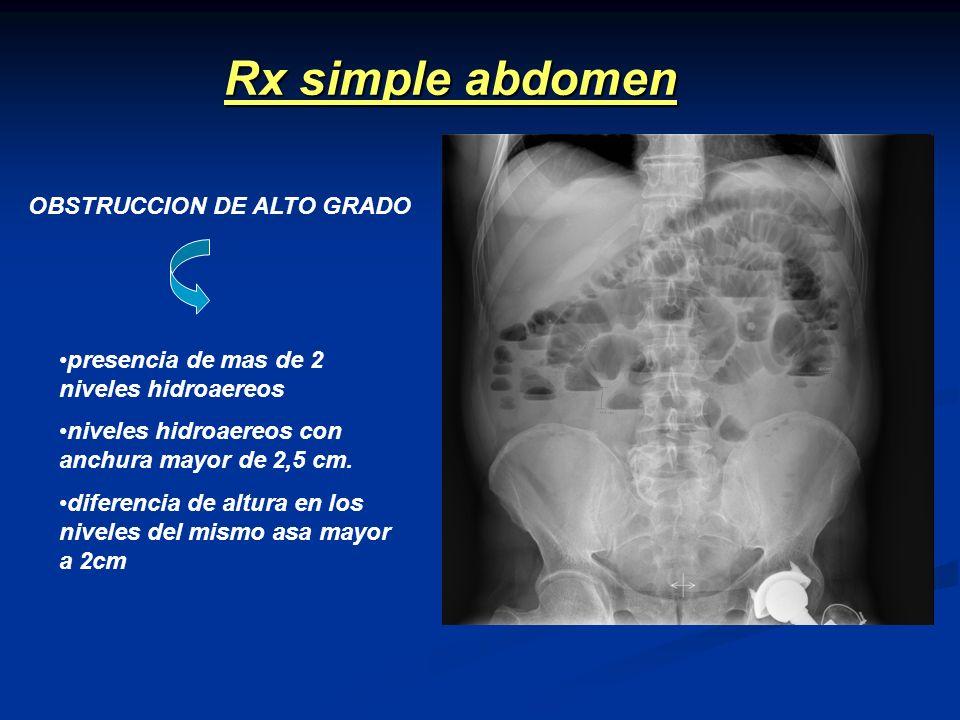 Rx simple abdomen OBSTRUCCION DE ALTO GRADO presencia de mas de 2 niveles hidroaereos niveles hidroaereos con anchura mayor de 2,5 cm. diferencia de a