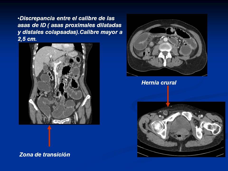 Discrepancia entre el calibre de las asas de ID ( asas proximales dilatadas y distales colapsadas).Calibre mayor a 2,5 cm. Hernia crural Zona de trans