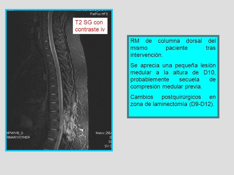 RM de columna dorsal del mismo paciente tras intervención. Se aprecia una pequeña lesión medular a la altura de D10, probablemente secuela de compresi