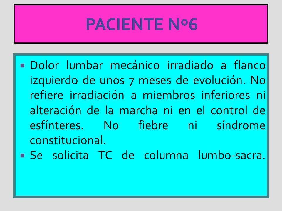PACIENTE Nº6 Dolor lumbar mecánico irradiado a flanco izquierdo de unos 7 meses de evolución. No refiere irradiación a miembros inferiores ni alteraci