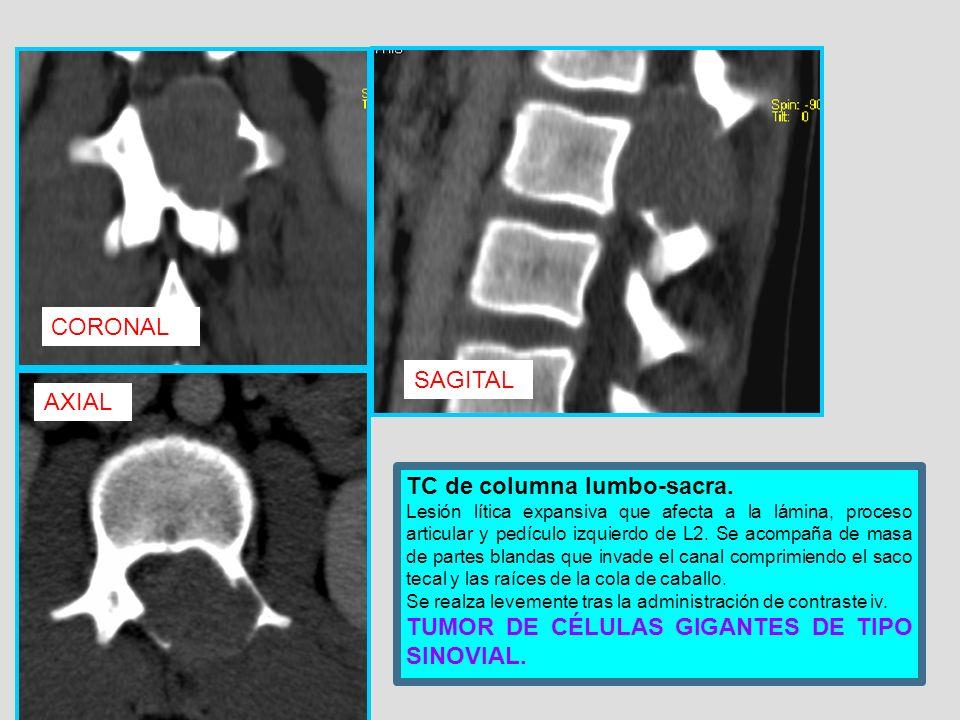 TC de columna lumbo-sacra. Lesión lítica expansiva que afecta a la lámina, proceso articular y pedículo izquierdo de L2. Se acompaña de masa de partes