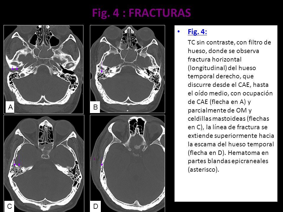 Fig. 4 : FRACTURAS Fig. 4: TC sin contraste, con filtro de hueso, donde se observa fractura horizontal (longitudinal) del hueso temporal derecho, que