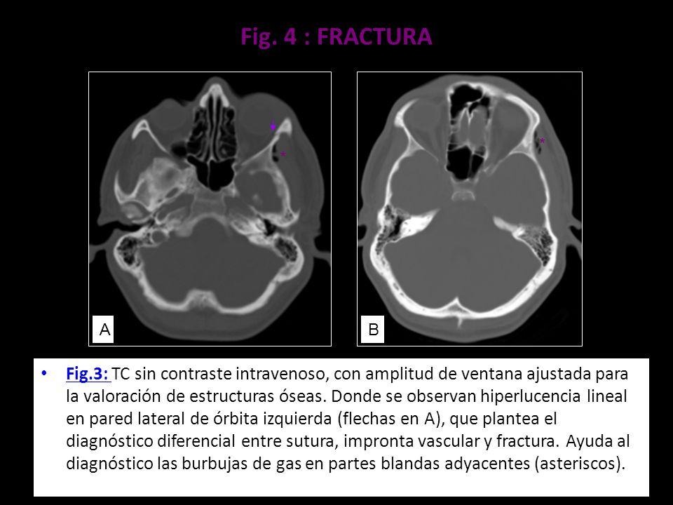 Fig. 4 : FRACTURA Fig.3: TC sin contraste intravenoso, con amplitud de ventana ajustada para la valoración de estructuras óseas. Donde se observan hip