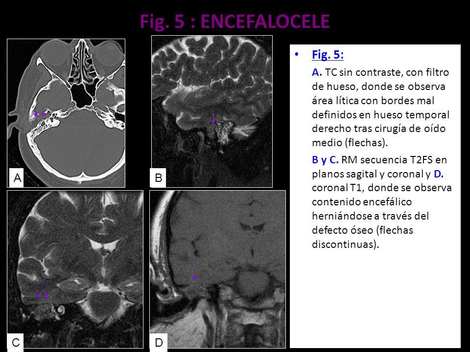 Fig. 5 : ENCEFALOCELE Fig. 5: A. TC sin contraste, con filtro de hueso, donde se observa área lítica con bordes mal definidos en hueso temporal derech