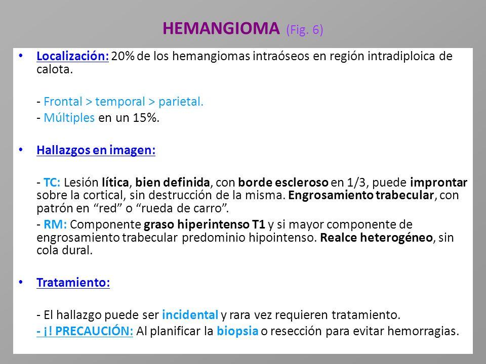 HEMANGIOMA (Fig. 6) Localización: 20% de los hemangiomas intraóseos en región intradiploica de calota. - Frontal > temporal > parietal. - Múltiples en