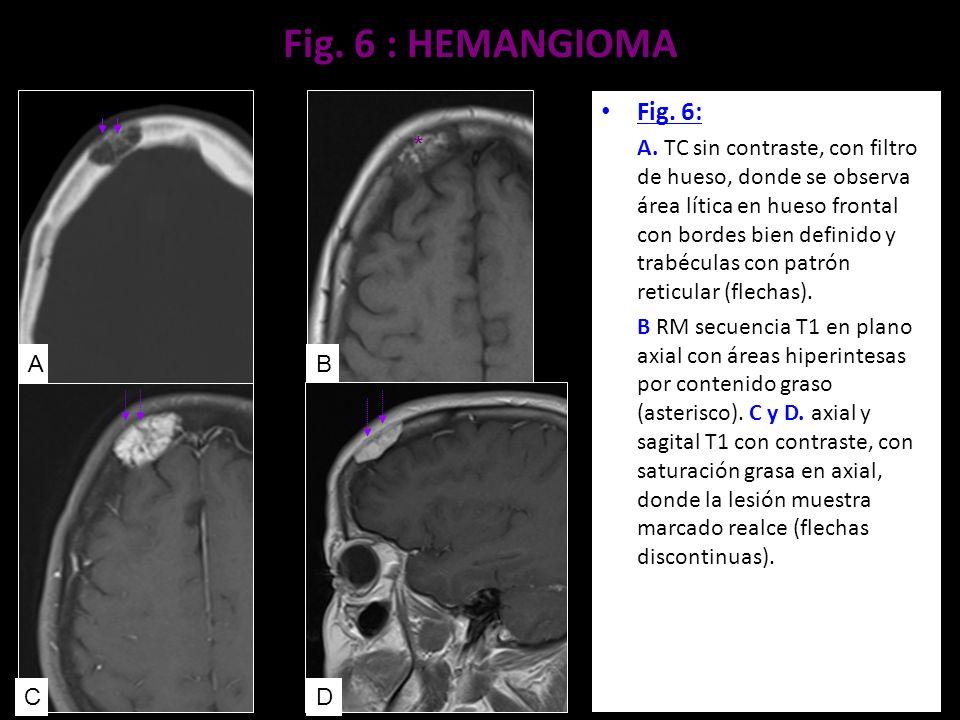 Fig. 6 : HEMANGIOMA Fig. 6: A. TC sin contraste, con filtro de hueso, donde se observa área lítica en hueso frontal con bordes bien definido y trabécu