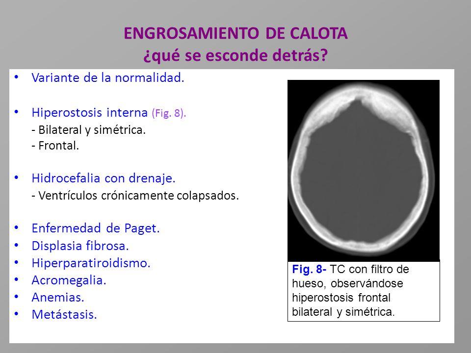 ENGROSAMIENTO DE CALOTA ¿qué se esconde detrás? Variante de la normalidad. Hiperostosis interna (Fig. 8). - Bilateral y simétrica. - Frontal. Hidrocef