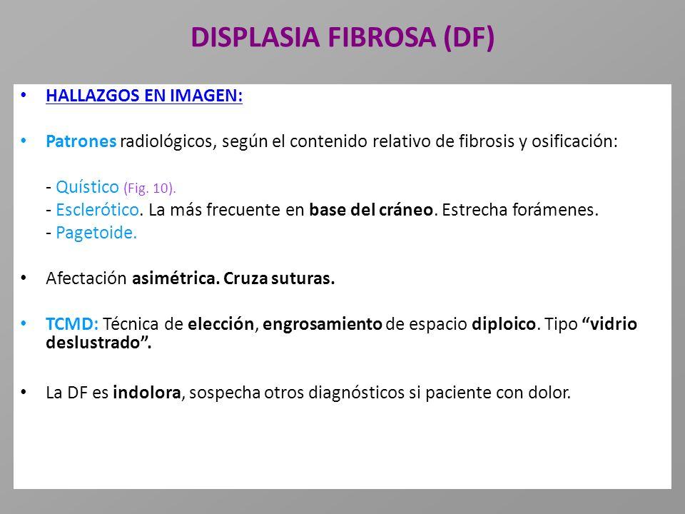 DISPLASIA FIBROSA (DF) HALLAZGOS EN IMAGEN: Patrones radiológicos, según el contenido relativo de fibrosis y osificación: - Quístico (Fig. 10). - Escl