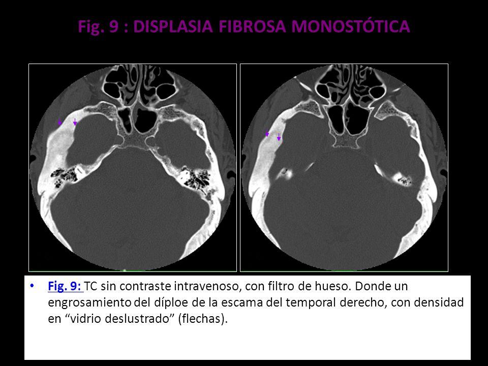 Fig. 9 : DISPLASIA FIBROSA MONOSTÓTICA Fig. 9: TC sin contraste intravenoso, con filtro de hueso. Donde un engrosamiento del díploe de la escama del t
