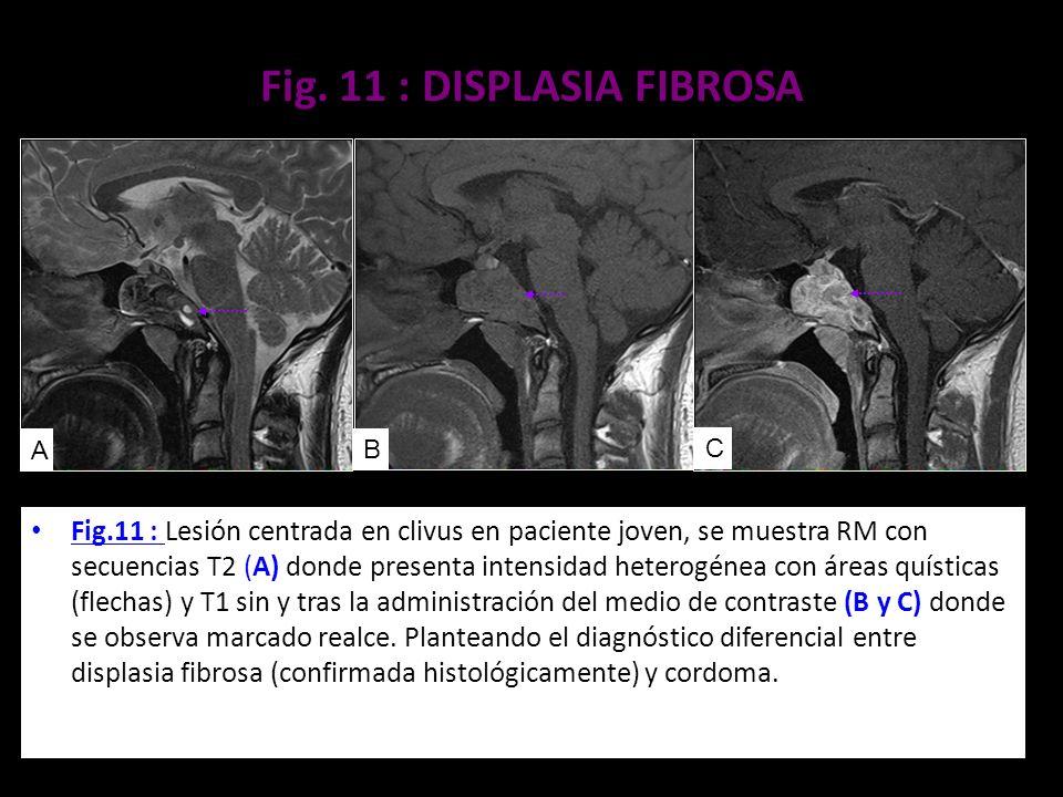 Fig. 11 : DISPLASIA FIBROSA Fig.11 : Lesión centrada en clivus en paciente joven, se muestra RM con secuencias T2 (A) donde presenta intensidad hetero