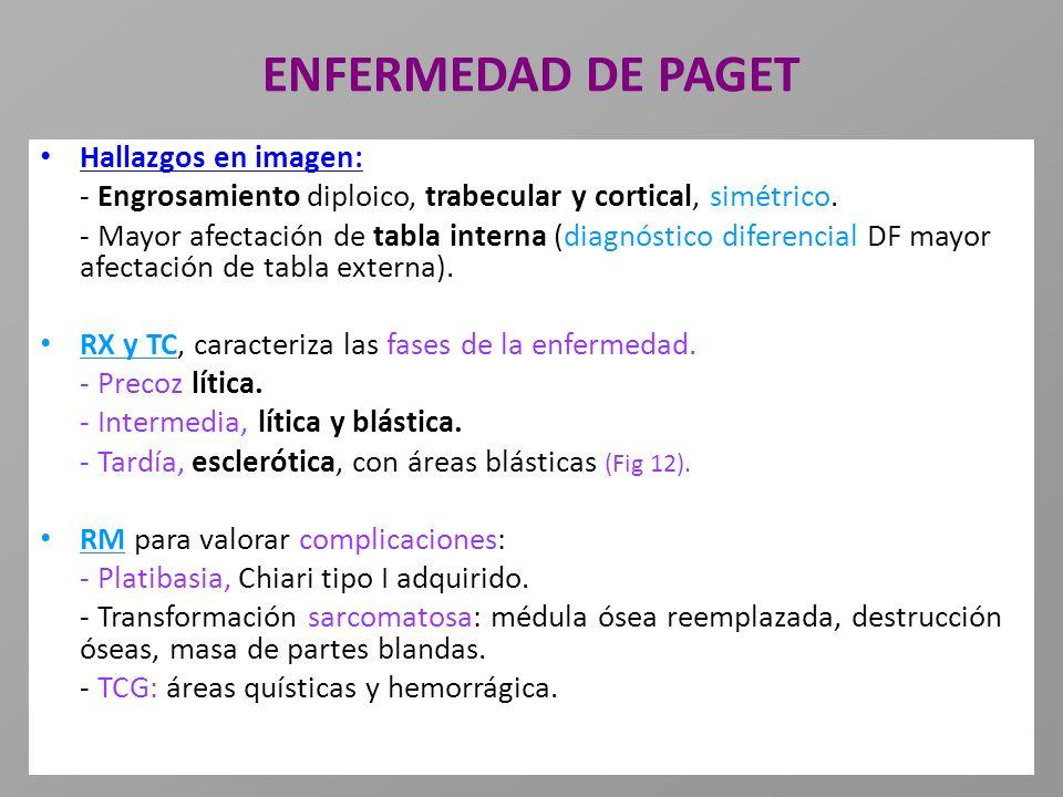 ENFERMEDAD DE PAGET Hallazgos en imagen: - Engrosamiento diploico, trabecular y cortical, simétrico. - Mayor afectación de tabla interna (diagnóstico
