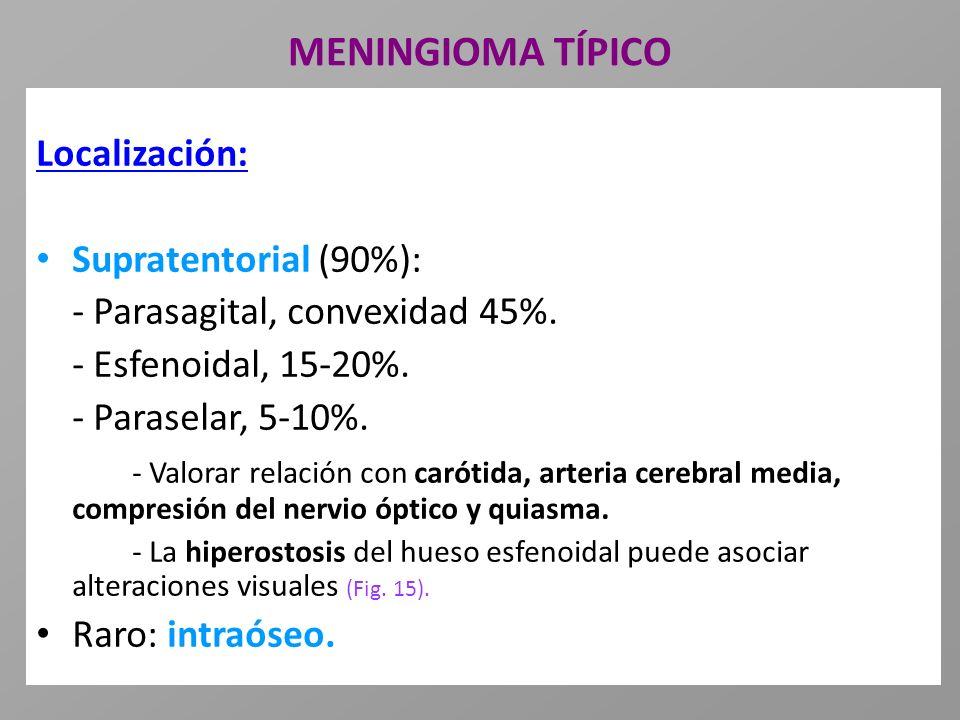 MENINGIOMA TÍPICO Localización: Supratentorial (90%): - Parasagital, convexidad 45%. - Esfenoidal, 15-20%. - Paraselar, 5-10%. - Valorar relación con