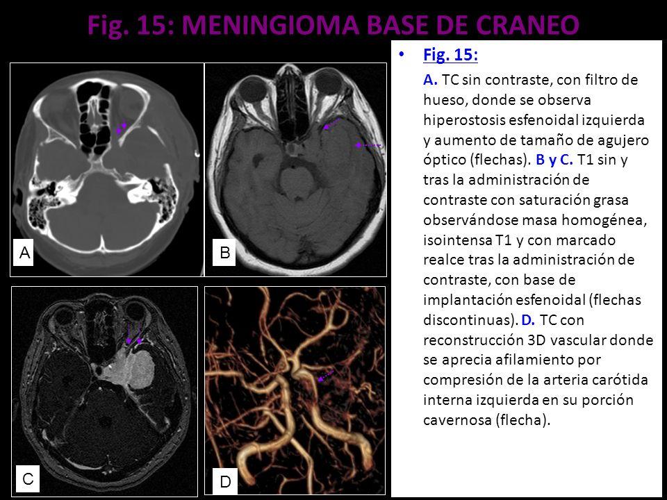Fig. 15: MENINGIOMA BASE DE CRANEO Fig. 15: A. TC sin contraste, con filtro de hueso, donde se observa hiperostosis esfenoidal izquierda y aumento de